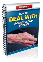 How To Deal With Rosacea and Eczema