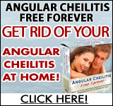 Angular Cheilitis ~ 75% Commission
