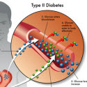 Thediabetesfactor Reverse Diabetes The Proven Way