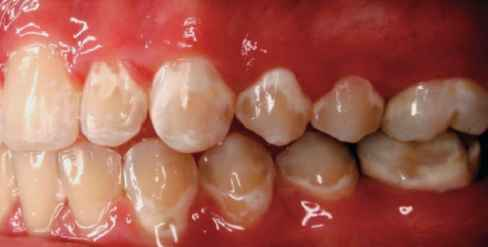 Dental Caries Figs