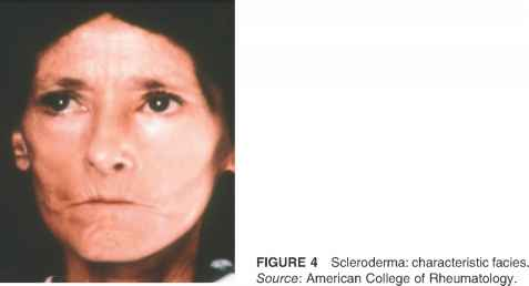 Scleroderma Facial Features
