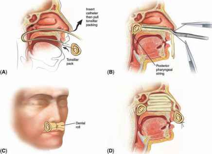 Balloon Inflated Nose For Epistaxis