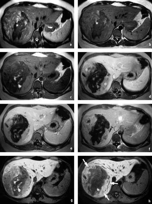 Difference Weighted Mri Lesions