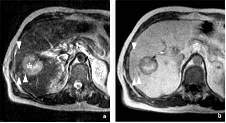 Mri Images The Liver
