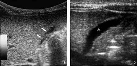 Triangular Cord Sign Ultrasound