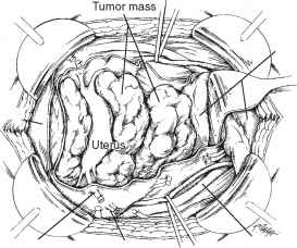 Bladder Tumour Resection