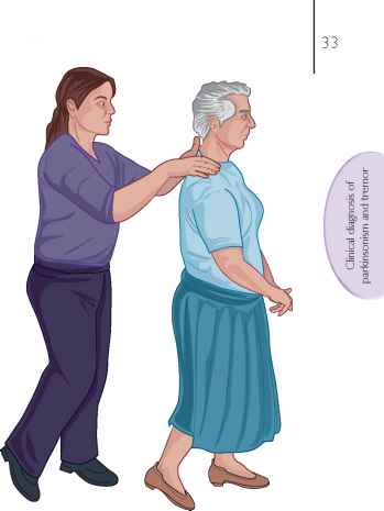 Posture Parkinson Retropulsion