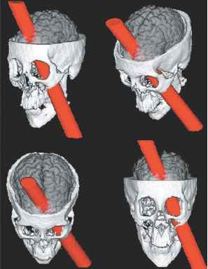Phineas Gage Skull And Brain Model