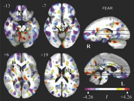 Fmri Scan Examples Psychology