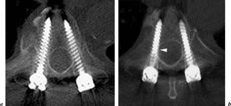 Mri After Pedicle Screw Fixation